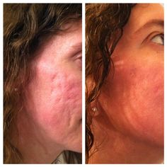 *Discover how to get rid of wrinkles with NO surgery or weird things.*  http://youtu.be/ilDQmbjXl-E