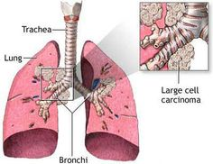 Lung cancer is the leading cause of cancer death in the United States in both men and women. Approximately 175,000 new cases are diagnosed each year. It most commonly strikes people between the ages of 45 and 70 who are smokers or ex-smokers.