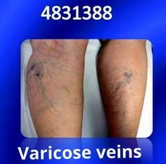 Varicose veins are veins under the skin of the legs, which have become widened, bulging, and twisted. They are very common and do not cause medical problems in most people.