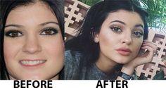 Kylie Jenner Plastic Surgery