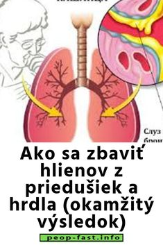 Ako sa zbaviť hlienov z priedušiek a hrdla (okamžitý výsledok) Beauty Hacks, Health, Medicine, Beauty Tricks, Salud, Beauty Dupes, Healthy, Beauty Tips, Beauty Secrets