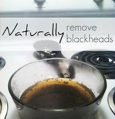 home remedies, natural skin, water drops, skin care, facial, beauti, remov blackhead, lavender oil, natur remov