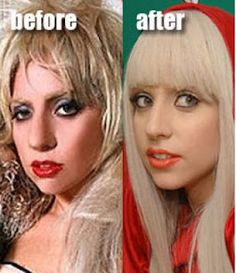 Lady Gaga  plastic surgery  - nose for sure. www.drgregpark.com