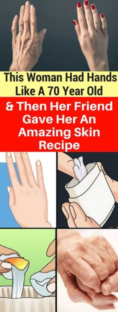 Recipe That Can Make Your Hand Look Younger!!! - All What You Need Is Here