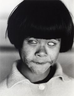 A young girl blinded by the atomic bombing of Hiroshima. Christer Strömholm