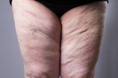 Zdjęcie Lipodemia, czyli choroba grubych nóg. Jakie są przyczyny i jak ją leczyć? #2 Physical Therapy, Fish Tattoos, Health, Close Up, Kidney Stones, Liver Cancer, Cholesterol Levels, Get Skinny, Loosing Weight