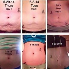 WOW look at these results using Nerium Firm! Nerium Firm tightens loose skin, gets rid of stretch marks, and cellulite! Summer is right around the corner ladies dont wait and order tours now :] send Tighten Stomach, Tighten Loose Skin, Natural Skin Tightening, Skin Firming, Tightening Stomach Skin, Skin Tips, Skin Care Tips, Extra Skin, Loose Belly