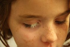ed438c4636 Poliosis is a condition in which there is a lack of pigment in the hair