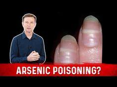Identify Arsenic Poisoning Through Your Nails