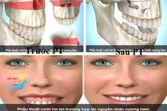 Phẫu thuật hàm hô là cách điều trị răng hô duy nhất đối với các trường hợp hô do xương hàm gây ra