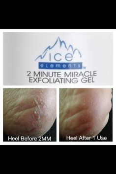 Get ready for the summer by exfoliating your heels with the 2 Minute Miracle Gel. No one wants cracked heels wearing their summer sandals and this is one of the many problems that this gel tackles. Skin Treatments, Conditioner, Ocean, Skin Care, Summer Sandals, Heels, Heel, Shoes Heels, The Ocean