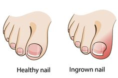 Use these tips to understand if your ingrown toenail can be successfully treated at home! http://www.patelpodiatry.com/blog/home-treatment-for-ingrown-toenails.cfm