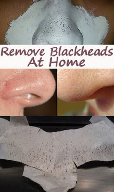Remove Blackheads in a Natural Way #Home remedies #Beauty