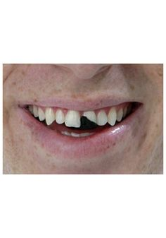 Were you in a bar fight? With a package of Tooth Wax, you'll look like you've been roughed up. You'll like an authentic hillbilly with this neat accessory. Get a little toothy this Halloween.