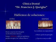 """En Clínica Dental """"Dr. Francisco Quetglas"""" tenemos soluciones para cada caso y…"""