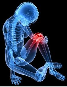 Arthritis is an ailment that affects people all over the world. It is very painful and it stems from the joints of the body becoming inflamed. Having arthritis in knee areas is particularly terrible since it can affect the way you wal Knee Arthritis, Rheumatoid Arthritis Symptoms, Fitness Motivation, Fitness Diet, Health Fitness, Knee Osteoarthritis, Puppy Pose, Knee Replacement Surgery, Massage