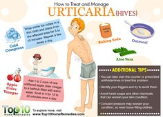How to Treat and Manage Urticaria (Hives) Naturally