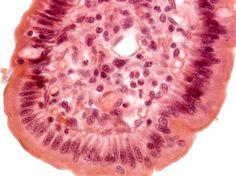 TECIDO CONJUNTIVO FROUXO: Ele preenche espaços não-ocupados por outros tecidos, apóia e nutre células epiteliais, envolve nervos, músculos e vasos sanguíneos linfáticos. Além disso, faz parte da estrutura de muitos órgãos e desempenha importante papel em processos de cicatrização  Fonte: http://www.sobiologia.com.br/conteudos/Histologia/epitelio12.php