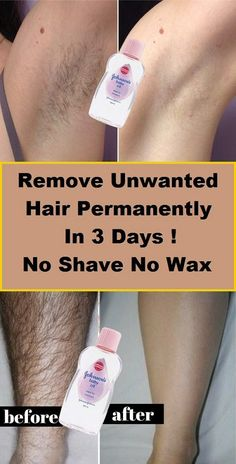 Remove Unwanted Hair Permanently In Three Days , No Shave No Wax, Removal Facial. - - Remove Unwanted Hair Permanently In Three Days , No Shave No Wax, Removal Facial & Body Hair - Beauty Makeup Hacks Ideas Wedding Makeup Looks for Wome. Permanent Facial Hair Removal, Leg Hair Removal, Remove Unwanted Facial Hair, Hair Removal Remedies, Hair Removal Methods, Unwanted Hair, Natural Hair Removal, Removal Tool, Facial Hair Remover
