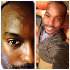 """WOW! Darnell's results ~ R+F Unblemish Regimen ~ """"I have always struggled with acne since my middle school years. At age 25, pimples and blackheads seem to just over take my face and really affected my self-esteem. When my sister first told me about R+F UNBLEMISH regimen, I was a little bit skeptical because I nearly tried everything. However..... I had to go and give it a shot.  After 5 weeks, my skin has improved tremendously. This line is truly a lifesaver! http://iarman.myrandf.com"""