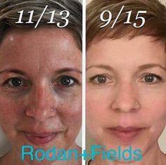 Beautiful skin! Get started today! susanhickman.myrandf.com