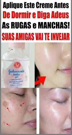 Baby Oil, Spa Day, How To Make, Face Wrinkles, Spots On Face, Dark Spots, Face Creams, Best Beauty Tips, Losing Weight