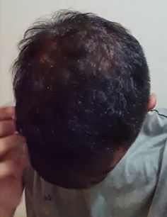 Does Minoxidil Work? Hamza's results after 3 months of using Minoxidil, DS Labs Revita Shampoo & Watermans Growpro supplements. Anti Hair Loss, Stop Hair Loss, Androgenetic Alopecia, New Hair Growth, Luscious Hair, Hair Falling Out, Hair Locks, Hair Regrowth