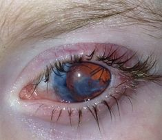 Corneal deterioration in a patient with Peter's Anomaly. Peter's Anomaly is a rare genetic disorder, characterized by hazy corneas, that is caused by abnormal development of structures in front of the vitreous humour. The majority of Peter's Anomaly is sporadic, bilateral, and is associated with other systemic malformations.