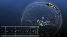 Now that the FDA has approved multiple devices for connecting to human brains--the door is open to some wonderful/frightening stuff.