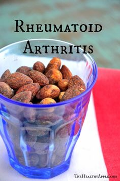 Rheumatoid arthritis occurs when your immune cells attack your joints, causing tissue damage, inflammation and pain.