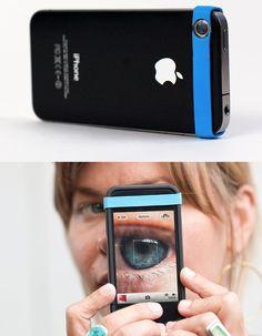 maco cell lens