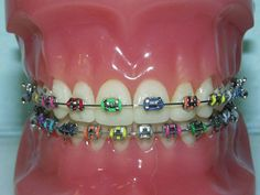 """I used to hate my Braces, but now I love them!!!!!!!!! Yes there a pain and they hurt but thats only for 10 percent of the time!!! So this is a shoutout for those who have braces, embrace them because when every one has realy wonky teeth you'll just be there like """"you should of got braces!!"""" Never be ashamed of them they help make you who you are!!!!!!!! P.S: dont look at the hair and makeup because its just not working today! :D. + Dont forget braces arn't for ever but wonky teeth are !!!!!"""
