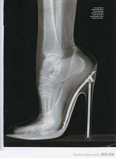 High heels + X rays