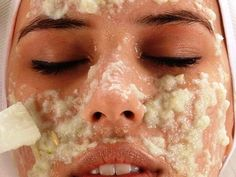 Homemade Botox - You don& have to spend a lot to get taut skin and youthful face! - Cure For Nature Cucumber Face Mask, Face Peel, Dark Spots On Skin, Brown Spots, Skin Spots, Bright Skin, Acne Scars, Face Care, Skin Care Tips