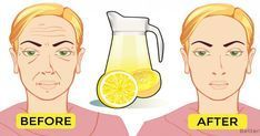 This homemade face lemon toner can make your wrinkles disappear · Fitness and Health Homemade Face Toner, Toner For Face, Homemade Face Masks, Lemon Juice Face, Lemon Juice Benefits, Lemon Toner, Luscious Hair, Home Remedies For Hair, Health Tips