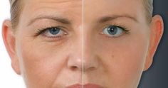 Lack of sleep, excessive exposure to ultraviolet rays and antioxidants deficiency- all lead to wrinkles. However, there is a natural solut...