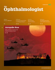 99 Best The Ophthalmologist images in 2015 | Optical coherence