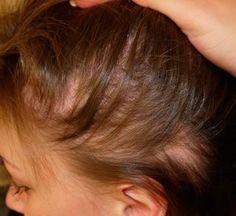 Síntomas de la alopecia areata en mujeres