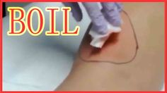 THE REMOVAL OF THE BOIL (Boil on the leg) P.P.V.