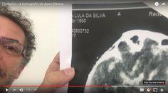 CAnadauenCE tv: Vaza resultado de tomografia de Marisa Letícia, as...