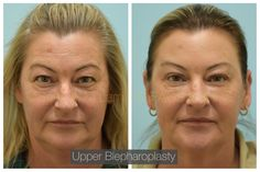 This 50-year-old female is shown before and one month after an upper blepharoplasty, Botox, and fillers. Wondering how to schedule a consultation with a Double Board Certified Facial Plastic Surgeon, Dr. Lam? Easy! Contact us at: ⠀ ⠀ ⠀⠀ ⠀ 📞972-312-8188 ⠀ ⠀ 🌎 www.lamfacialplastics.com ⠀ ⠀ 📩 info@lamfacialplastics.com ⠀ ⠀ 📍6101 Chapel Hill Boulevard, Suite 101, Plano, Texas 75093 ⠀ 🌐We also offer virtual consultations ⠀ ⠀ Plano Texas, Facial Rejuvenation, Chapel Hill, 50 Years Old, Schedule, Plastic, Female, Board, Easy