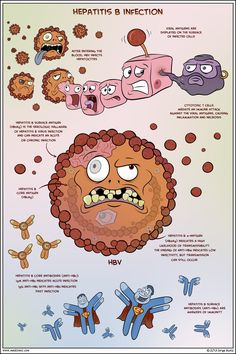 Hepatitis B Infection - Medcomic