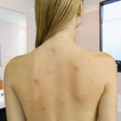 Treatments For Back Acne - Home Remedies For Back Acne | Natural Home Remedies