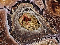 Chlamydia infection. Coloured scanning electron micrograph of a cultured human cervix cancer cell infected by Chlamydia trachomatis bacteria. At centre is an inclusion body (round) that has been ripped open, revealing hundreds of Chlamydia particles (small, round) inside.