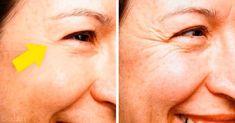 Propiedades de la clara de huevo para la piel - e-Consejos