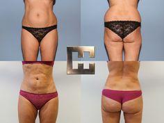Vor und nach ausgedehnter Ultraschallfettabsaugung Liposuction, Bikinis, Swimwear, Youtube, Thong Bikini, Fashion, Ultrasound, La Mode, Fashion Illustrations