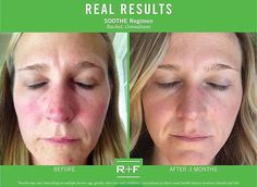 """If you or anyone you know suffer from red irritated skin why not give Soothe a try! Check our Rachel's results and what she had to say ~ """"I didn't realize just how red and irritated my face was until I looked at my Before and After pictures. SOOTHE has done wonders for my skin and my self-esteem. I cannot wait to see what my skin looks like a year from now!"""" –R + F Consultant, Rachel.  https://iarman.myrandf.com/Shop/Soothe"""