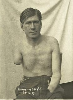 Wounded American soldier, 1917