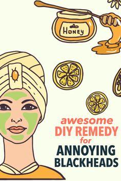 DIY remedies for blackheads! #beautytip