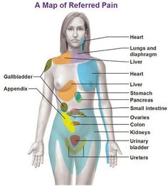 Map of Referred Pain in Woman Body. Repinned by SOS Inc. Resources http://pinterest.com/sostherapy.